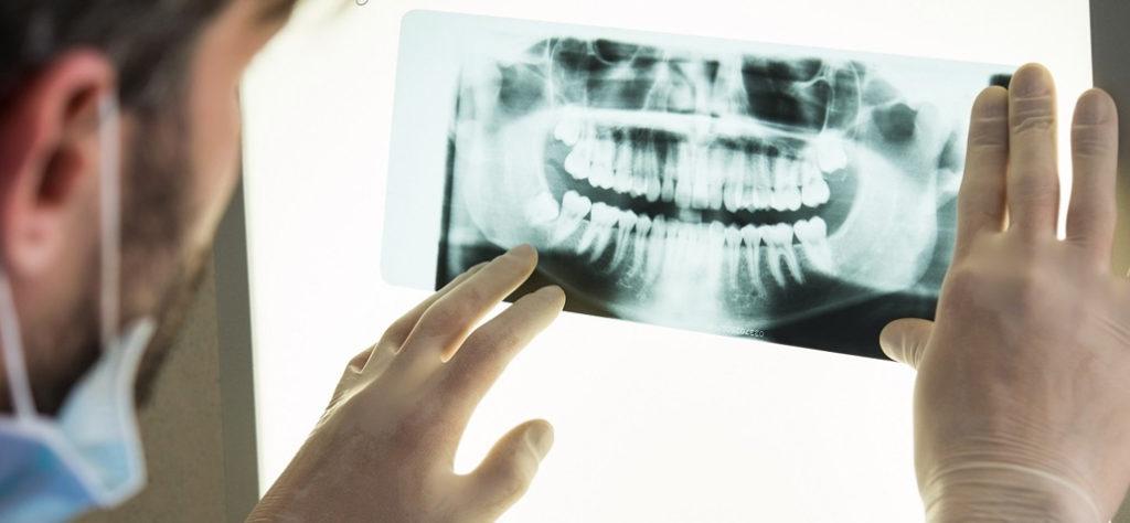 Ortopantomografia: affidabilità ed efficacia nel valutare l'età
