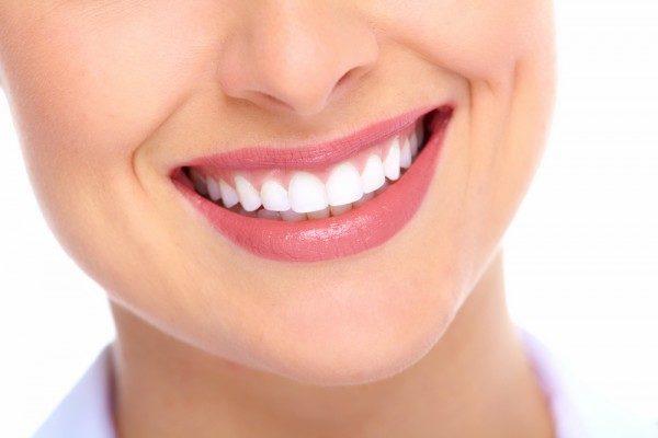 DENTALPLUS studio dentistico - Sbiancamento dentale: aumentano le richieste