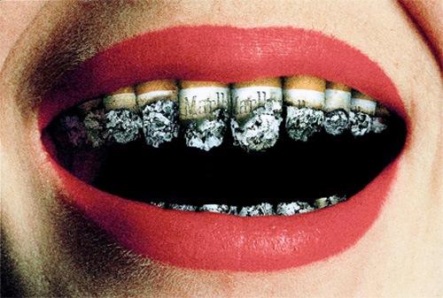 Il fumo fa male ai denti: nuovo approccio al tabagismo